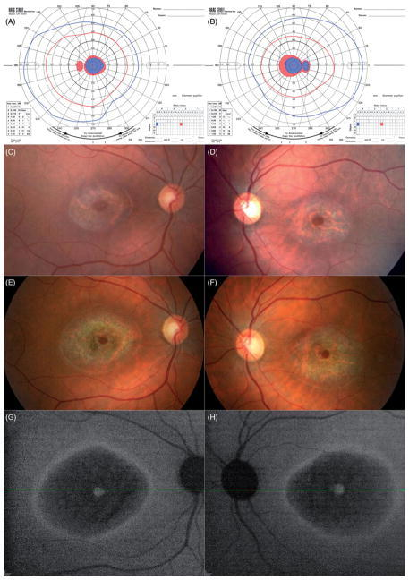 Goldmann visual fields of the left (A) and right (B) eyes from the initial visit in 2006, showing ring scotomas consistent with the bull's eye-appearing macular lesions. Shaded areas indicate the target was not seen in that area. Fundus photos from 2006 (C, right eye and D, left eye) and 2013 (E and F) show some extension of RPE atrophy, apparent at the peripheral boundaries, as well as in the foveal region, in both eyes over 7 years. Near-infrared autofluorescence (G and H) from the 2013 follow-up visit shows hyper-autofluorescence at the fovea, surrounded by hypo-autofluorescence (bull's eye), further surrounded by a ring of hyper-autofluorescence.
