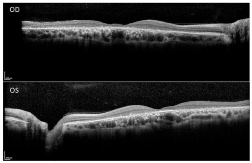 Spectral domain optical coherence tomography line scans (right eye top and left eye bottom, corresponding to the location of the horizontal lines on the near-infrared autofluorescence images in Figures 2G and H, respectively) show intact RPE at the foveola in the presence of marked foveal thinning, surrounded by atrophy of the outer retinal layers and retinal pigment epithelium, with relatively more normal retinal structure at the margins of the line scans in both eyes.