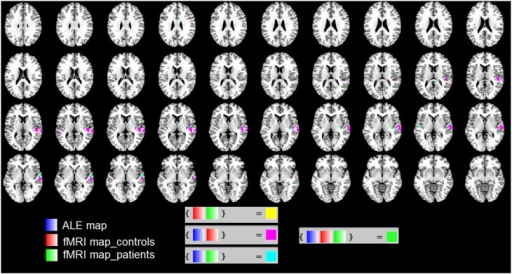 "We used the ""Logical Overlays"" function in Mango (http://ric.uthscsa.edu/mango/). We overlapped the ALE map (in blue) with the fMRI map of our patients (in green) and that of healthy controls (in red). Different combination of overlaps were included, e.g., fMRI control and fMRI patients; ALE map and fMRI controls. In particular, in green the overlap of the three maps in the STS."