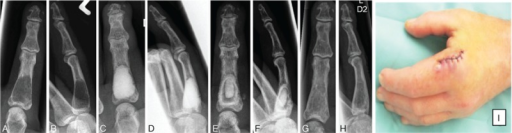 X-ray of the left second digit of a 35-year-old patient with enchondroma in the proximal phalanx of the second digit preoperatively (A, B), direct postoperatively after curettage and Cerament use (C, D), at 2 weeks postoperatively (E, F), and at 8 weeks after surgery (G, H). Postoperative redness and swelling developed, third postoperative day, due to milky drainage (I).