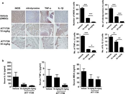 Effects of A77 1726 on inflammatory molecules and oxidative stress in the joints of IL-1Ra-KO mice. a Tissue sections from the joints of IL-1Ra-KO mice treated with A77 1726 or vehicle were stained with antibodies to TNF-α, IL-1β, iNOS, or nitrotyrosine. The cells stained with each antibody are shown in brown (left). Expression of proinflammatory molecules and iNOS and nitrotyrosine (oxidative stress markers) was significantly attenuated in the joints of A77 1726-treated IL-1Ra-KO mice compared with vehicle-treated animals (right). b Levels of circulating TNF-α, IL-1β and MDA in the serum of IL-1Ra-KO mice in each group. Values are shown as mean ± SD. *P < 0.05; **P < 0.01; ***P < 0.001