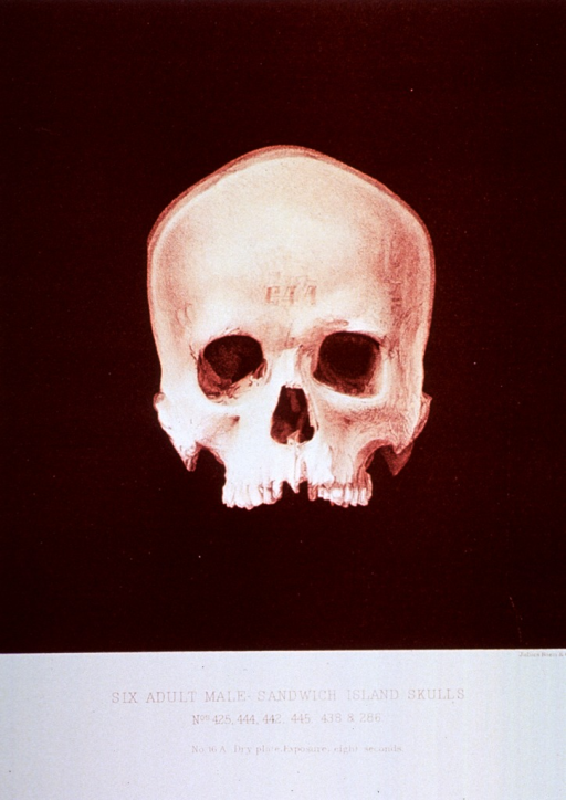 <p>Black and white print of one of 6 male adult Sandwich Island skulls. This print is no. 16a that appears in &quot;On composite photography as applied to craniology; on measuring the cubic capacity of skulls, memoirs of the National Academy of Sciences; volume 3, 13th memoir&quot; by J.S. Billings and Washington Matthews.</p>