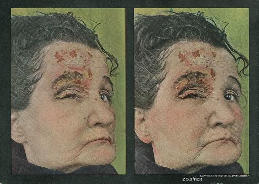 <p>Stereographies of a woman's face with lesions caused by Herpes zoster.  Stereoscopic skin clinic.</p>