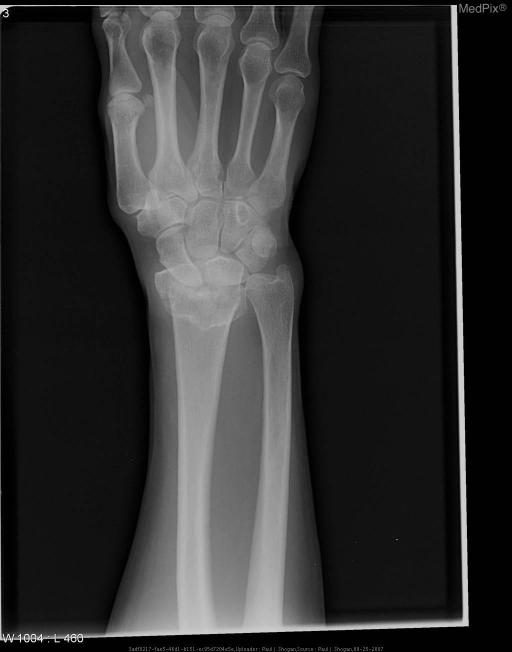 Transverse fracture extending from the volar to the dorsal surface of the distal portion of the radius, accompanied by impaction, and marked dorsal angulation and dorsal displacement of the distal radius, without intra-articular involvement. The radius is foreshortened secondary to bayonet-type displacement.  No ulnar styloid process fracture is identified.
