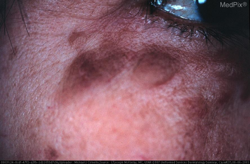 PRIMARY LOCALIZED CUTANEOUS NODULAR AMYLOIDOSIS