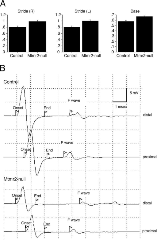 Gait and electrophysiological analysis of Mtmr2- mice. (A) Gait analysis revealed that right stride (R) (F[1, 18] = 9.96; P = 0.0055); left stride (L) (F[1, 18] = 10.97; P = 0.0039); and base (F[1, 18] = 16.746; P = 0.0007) were significantly increased in mutant mice as compared with wild-type mice, at 6 mo old. Values on the y axis refer to the measures normalized for the length of the animals (from the nape of the neck to the insertion of the tail). (B) Traces show the control and Mtmr2- profiles of compound motor action potential recorded after stimulation at the ankle (distal) and at the sciatic notch (proximal). The onset and end of the compound motor action potential and the onset of the F-wave are indicated by flags.
