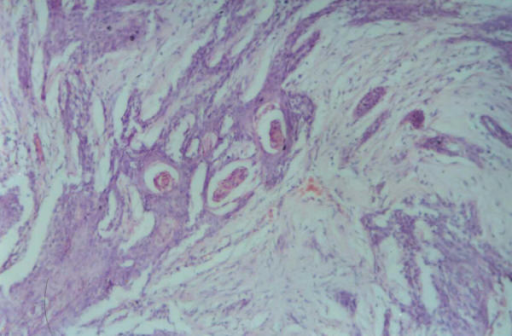 photomicrograph showing sheets of tumor cells with eosinophilic cytoplasm and hyperchromatic nucleus. Keratin pearl formation is seen. [Hematoxylin and Eosin ×200]