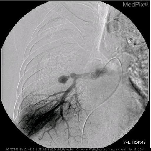 A selective right pulmonary artery angiogram demonstrates the aneurysm.  The right upper lobe pulmonary artery is not seen.