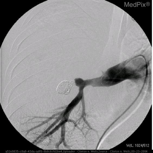 A selective right pulmonary artery angiogram demonstrates the aneurysm.  The right upper lobe pulmonary artery is not seen.  After several coils were placed no flow is noted in the aneurysm.