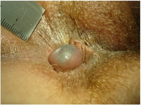 Skintag pictures anus Female