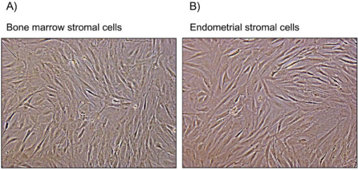 Representative phase contrast images (10×) of pure population of bovine endometrial stromal cells and bovine bone marrow stromal cells with no apparent morphological differences. Each experiment was repeated three times giving similar results.