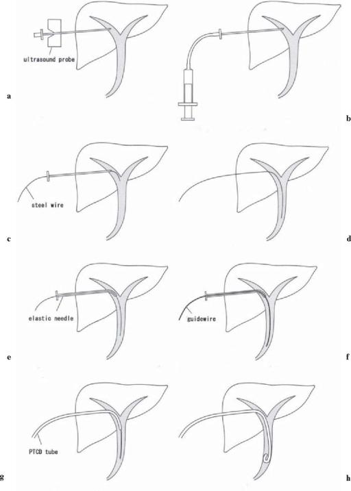 Percutaneous transhepatic cholangial drainage (PTCD or