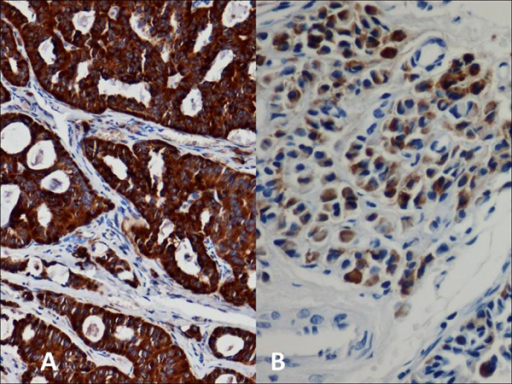 Middle ear adenoma. Immunohistochemical stains for synaptophysin (A) and chromogranin (B) show strong positivity within tumor cells.