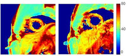 T2 maps obtained on one volunteer in breath hold (left) and in free breathing (right)