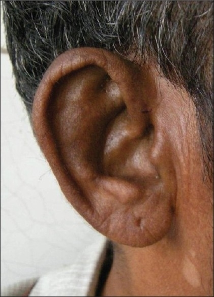 Pigmentation of the ear