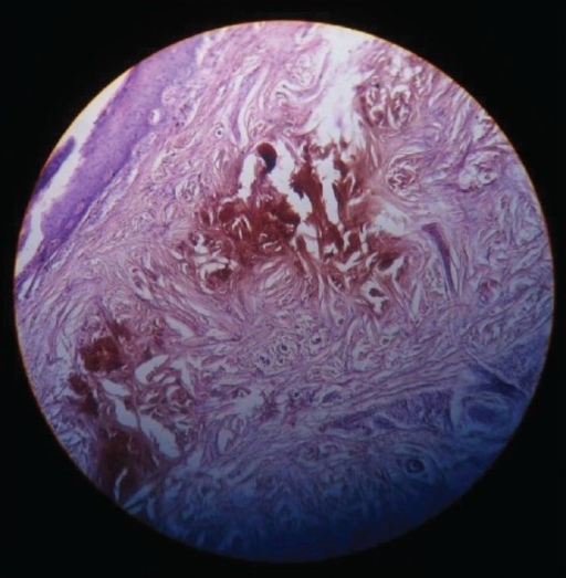 Biopsy picture showing pigment deposits in the dermis with a characteristic ochre color