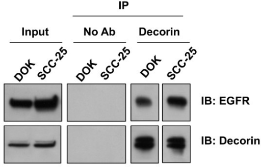 Nuclear Decorin associates with EGFR. Nuclear lysates were extracted from DOK and SCC-25 cells and were immunoprecipitated (IP) with decorin antibody. Immunocomplexes were subjected to SDS-PAGE and were analysed by immunoblotting (IB) with anti-decorin and anti-EGFR antibodies.