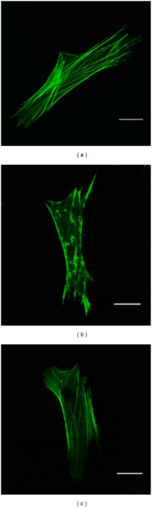 F-actin visualization by phalloidin labeling as analyzed by confocal microscopy. Scale bar = 10 μm (A: control group; B: injury group; C: Verapamil-treated group).