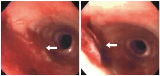 Esophago-gastro-duodenoscopy revealed an outpouching lesion covered with clotted blood, suspected of being an aorto-esophageal fistula.