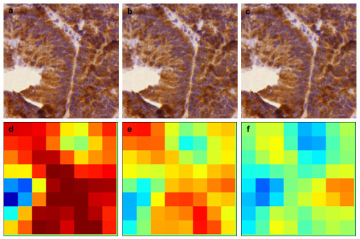 Sample images of the effect of compression to visual image quality in a colorectal cancer epithelial specimen, a) lossless, b) compression ratio 1:25, and c) compression ratio 1:50, with corresponding result images (d-f).