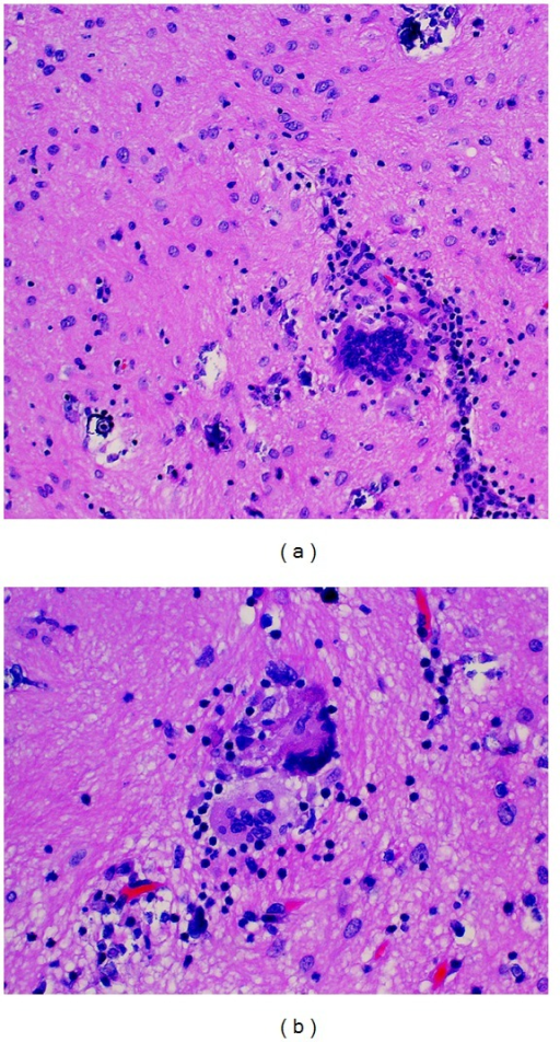Histopathologic sections reveal chronic inflammation, astrogliosis, and scattered mineralizations [(a) H&E ×200]. Frequent multinucleated giant cells were present [(b): H&E ×400].