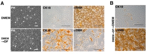 Expression of CK18 and αSMA in RL/DMEM cells cultured in DMEM- and DF-based mediumThe morphology of the live cells was observed under a phase-contrast microscope [PH in (A)]. The RL/DMEM cells were routinely passaged in DMEM-based medium [DMEM in (A)]. The cells were cultured for 11 days after the replacement of the medium with a DF-based medium [DMEM→DF in (A)]. These cells were then returned to DMEM-based medium to determine their plasticity (B). The cells were plated in eight-well chamber slides in the conditions indicated, fixed and stained with specific antibodies against CK18 or αSMA. Scale bar = 100 μm.