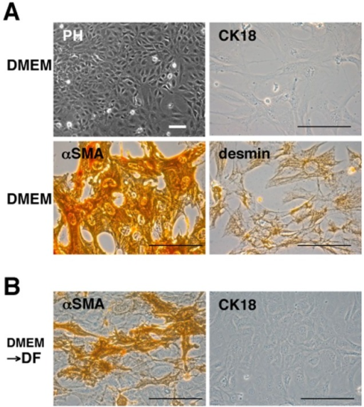 Immunocytochemical characterization of RNPC cellsThe morphology of the live cells was observed under a phase-contrast microscope [PH in (A)]. The RNPC cells were plated in eight-well chamber slides in DMEM-based medium, then fixed and stained with specific antibodies against CK18, αSMA and desmin (A). The cells were also cultured for 9 days after the replacement of the medium with a DF-based medium, then fixed and stained with specific antibodies against CK18 and αSMA (B). Scale bar = 100 μm.