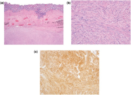 (a) Low-power image stained with hematoxylin and eosin of a rectal GIST showing the tumor located in the muscularis propria. (b) High-power image stained with hematoxylin and eosin shows that the tumor is composed of fascicles of uniform spindle cells with elongated nuclei and palely eosinophilic cytoplasm. (c) Immunohistochemistry image showing diffuse positivity for KIT. The tumor also showed diffuse positivity for CD34 (not shown).