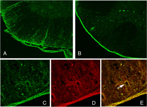 Spinal cord sections from mouse 24 hours after 4 injections of NMO-IgG on days 13, 14, 18, and 19 (A) versus control IgG (B) showing NMO-IgG penetration into the parenchyma of the spinal cord as shown by anti-human IgG staining (green). Sections were costained with anti-human IgG (green, C), anti-AQP4 antibody (red, D) showing co-localization in areas of AQP4 expression especially around blood vessels (arrow in merged image, E).
