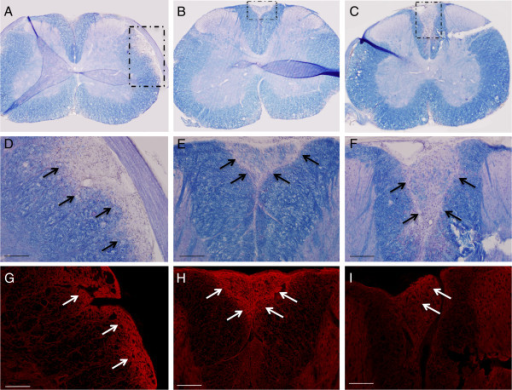 Sections from spinal cords of mice 62 days after injection of NMO-IgG (A, D, G), human IgG controls (B, E, H) and vehicle saline controls (C, F, I). Eriochrome staining shows large areas of pale blue demyelination in the NMO-IgG group (A, magnified in D) as indicated by the arrows. Typical EAE areas of posterior column demyelination were present in the control-IgG (B, magnified in E) and vehicle control (C, magnified in F) groups. Aquaporin-4 staining (red) in all groups were similar and appeared increased in areas of demyelination. Scale bars in D-I represent 100 μm.