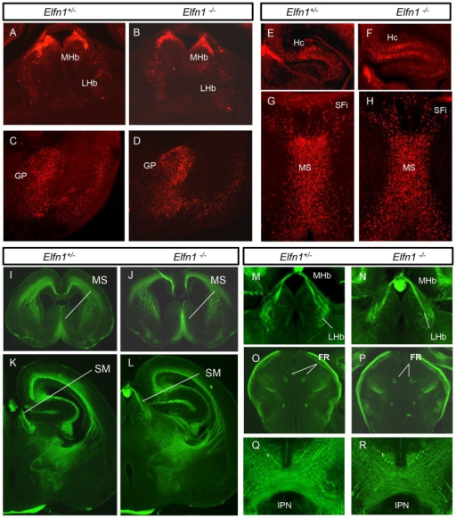 Phenotypic analysis of the Elfn1−/− mouse brain at P0.β-gal staining patterns in coronal sections of the Elfn1+/− (A,C,E,G) and Elfn1−/− (B,D,F,H) show comparable patterns indicating no obvious morphological phenotype in the Elfn1 mutant brain (n = 4). (I–R) Neurofilament staining patterns in Elfn1+/− (I,K,M,N,Q) and Elfn1−/− (J,LN,P,R) show no apparent abnormality in connectivity (n = 4). FR, fasciculus retroflexus; GP, globus pallidus; Hc, hippocampus; IPN, interpeduncular nucleus; LHb, lateral habenula; MHb, medial habenula; MS, medial septum; SFi, septofimbrial nucleus; SM, stria medullaris; VP, ventral pallidum.