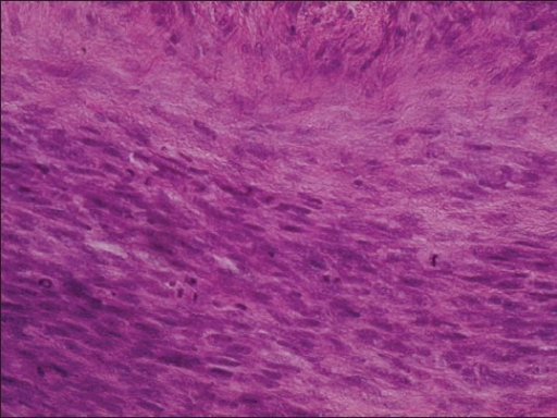 Neoplastic spindle-shaped cells showing mitotic figures (H&E stain,×400)
