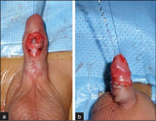 Intra-operative repair of congenital anterior urethrocutaneous fistula (a) dissection of the fistula, (b) good urine stream from external urethral meatus after completion of a Thiersch-Duplay repair