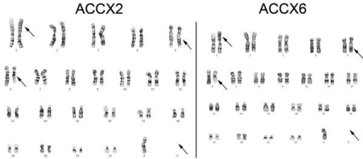 Representative karyotypes of ACCX2 and ACCX6The karyotype of ACCX2 is shown with arrows demonstrating the translocation between chromosomes 1 and 6, an inverted 5 and loss of the Y chromosome. A representative karyotype of ACCX6 demonstrates the identical abnormalities. The karyotype designation for both ACCX2 and ACCX6 is as follows: 45, X, −Y, t(1;6)(p22;q13), inv(5)(q13q33).