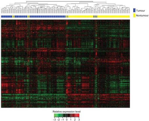 Unsupervised hierarchical clustering of the 119 pairs of tissues. The normalised expression data of the 6389 lncRNAs with coefficient of variance >0.10 was used for clustering analysis. Hierarchical clustering clearly separated tumour (blue bar) and normal (yellow bar) samples. Only six tumour samples and six normal samples were misclassified.
