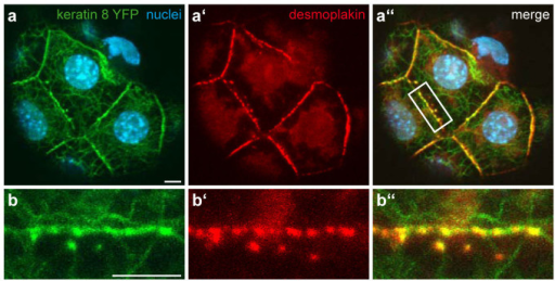 Co-localisation of desmoplakin and Krt8-YFP in a blastocyst.(a–a′′) Fluorescence microscopy of Krt8-YFP distribution with Hoechst33342-staining to detect nuclear DNA (a) and anti-desmoplakin staining (a′) in the trophectoderm of a fixed homozygous Krt8-YFP blastocyst. The merged image shows co-localization of Krt8-YFP and desmoplakin (a′′). (b–b′′) Details of membrane staining (white box in a′′). Note the co-distribution of fluorescent keratins and desmoplakin-positive structures at cell-cell borders. All scale bars, 5 μm.