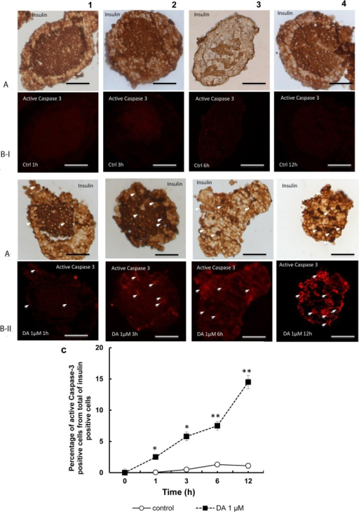 Apoptosis of beta cells treated with dopamine after labelling for active Caspase-3.Images obtained by double immunohistochemistry for insulin (A) (brown) and active caspase-3 (B) (fluorescence in red) in control islets (I), and dopamine-treated islets at 1, 3, 6 and 12 h (II). As can be observed in the micrographs there is minimal reaction in islets with glucose alone (BI-1, 2, 3, and 4). Treatment with dopamine induced positivity for caspase-3 (B-II 1, 2, 3 and 4), The intensity of the fluorescent signal was increased according to increase the time point of study. (C) Plot showing the increase induced by dopamine 1μM in the percentage active caspase-3 positive cells from total of insulin positive cells at the different time-points assayed. From 1 to 12 hours of treatment a significant increase (*p<0.05, **p<0.01 with respect to their respective controls) was observed. Scale bar: 50 μm.