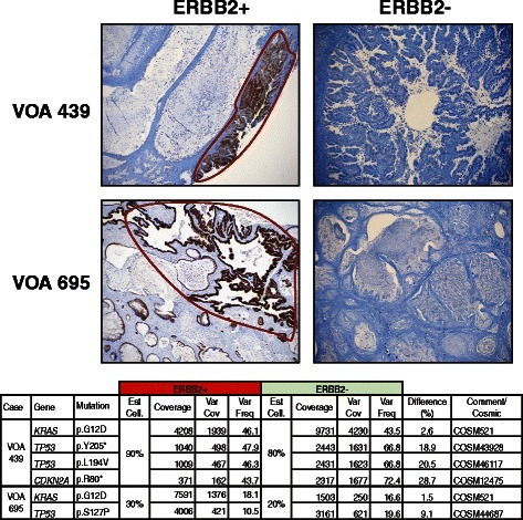 ERBB2 immunohistochemical heterogeneity in two MC and sequencing results from each distinct component. ERBB2+ regions were microdissected and sequenced independently from the ERBB2- components to compare mutation events. Identical KRAS mutations were observed in the ERBB2+ and ERBB2- regions for both cases. ERBB2 high-intensity staining regions was used as a proxy for gene amplification status, as regions previously defined by this high-level IHC staining correlated perfectly with FISH and/or CISH data suggesting amplification of the ERBB2 gene [13]