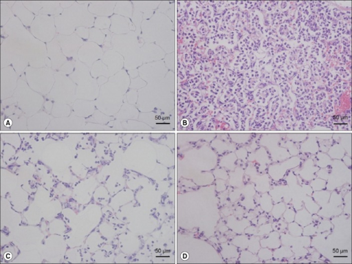 The effect of EphA2 monoclonal antibody pretreatment in lipopolysaccharide (LPS)-induced lung injury. Mice were intranasally treated with IgG or EphA2 antibody. One hour later, they were intranasally treated with phosphate buffered saline (PBS) or 40 µg LPS in PBS. The lungs were removed after 24 hr and stained with hematoxylin and eosin (H&E). (A) IgG+PBS group, (B) IgG+LPS group, (C) EphA2 Ab 2 µg+LPS group, and (D) EphA2 Ab 4 µg+LPS group, n=4 per group. The IgG+LPS group (B) showed obvious neutrophil infiltration and alveolar septal infiltration; however, the EphA2 Ab+LPS groups (C, D) showed attenuated lung injury (H&E stain, ×400).