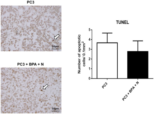 TUNEL staining on PC3 xenograft specimens.Xenograft tissues of mice (Group 1: untreated control and Group 4: BPA-mediated BNCT) were stained with TUNEL and the number of apoptotic cells was quantified. White arrows indicate TUNEL+ cells.