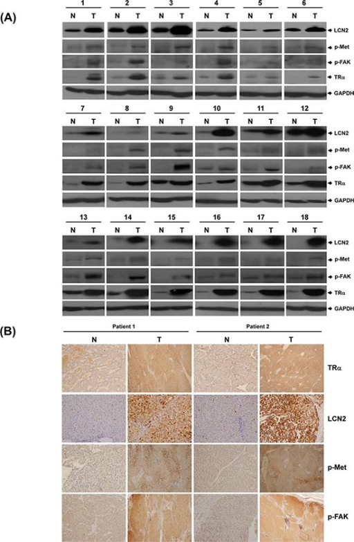 LCN2 and TR expression in clinical specimensTR, LCN2, p-Met and p-FAK protein levels determined via Western blot in 18 representative HCC tumor tissues A. and B. IHC in 2 paired patient sections.