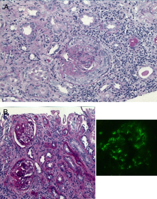 (A) Glomerulus with a cellular crescent in a first renal biopsy; ×20, PAS. (B) Segmental glomerulosclerosis and atrophy of tubuli and fibrosis of interstitium in a second renal biopsy 11 months later, ×20, PAS (left) and IgA immunofluorescence (right).