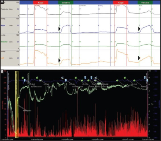 (A) Anorectal manometry, four view measurements: Dyssynergic defecation is seen in Valsalva as puborectalis pressure (internal sphincter) increased in push maneuver (arrow heads). (B) Normal Wireless Motility Capsule (SmartPill®) study: red are pressure, blue temperature and green pH readings. First tracing is oro-gastric transit, yellow box is duodenal, and remaining tracing is small and large bowel transit