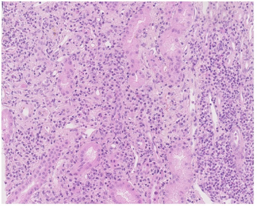 Kidney biopsy. Optical microscopy showed significant interstitial lymphocytic infiltration (HES).