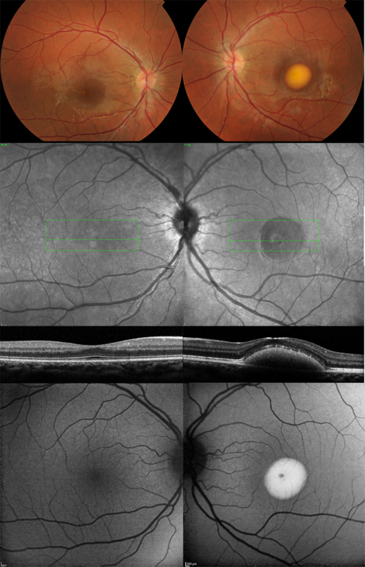 Multimodal imaging of (Left column) the right eye and (Right column) the left eye of patient (Case 1) with unilateral BEST1-associated retinopathy. Color fundus photographs (Top row), infrared reflectance images (Second row), horizontal B-scans derived from spectral-domain optical coherence tomography through the foveal region (Third row), and fundus autofluorescence images (Bottom row) of both eyes are shown. The left eye presents with a typical yolk-like elevated lesion at the central macula that was hyperautofluorescent on fundus autofluorescence; spectral-domain optical coherence tomography revealed subretinal fluid in addition to the subretinal deposit.