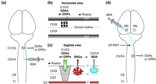 The models of spinal cord injury in adult rats used in | Open-i