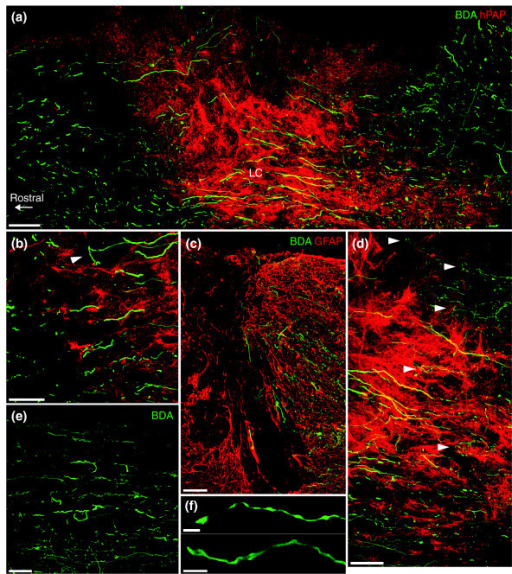 Endogenous sensory axon regeneration across GDA-transplanted dorsal column injuries at 8 days after lesion and transplantation. (a) A montaged, low-magnification confocal image scanned from a single 25-μm thick sagittal section, showing BDA-labeled ascending dorsal column axons (green) that have entered, grown within and exited a hPAP+ (red) GDA-transplanted dorsal column lesion. LC, lesion center. (b) A high-magnification image of a rostral graft/host interface showing BDA+ axons exiting the GDA graft and entering host white matter. A few axons were observed to have turned away from the interface and grown back towards the lesion center (arrowhead). (c) In control lesions, the vast majority of BDA+ axons have formed dystrophic endings and failed to leave the caudal margins of the lesion, marked by hypertrophic GFAP+ astrocytes (red). (d) A high-magnification image showing numerous BDA+ axons that have successfully crossed the host/graft interface at the caudal lesion margin. A few cut axons (arrowheads) have, however, failed to leave the caudal lesion interface and can be seen to have turned and/or formed dystrophic endings, particularly in regions containing few hPAP+ GDAs (red). (e) BDA+ axons located near the pial surface and ventral regions of cuneate white matter at 1.5 mm rostral to a GDA-bridged lesion site. (f) BDA+ axon growth cones in white matter 1.5 mm rostral to the lesion site often display streamlined growth cones indicative of rapid growth. Scale bars: (a,c) 100 μm; (b-e) 50 μm; (f) 5 μm (top) and 10 μm (bottom).
