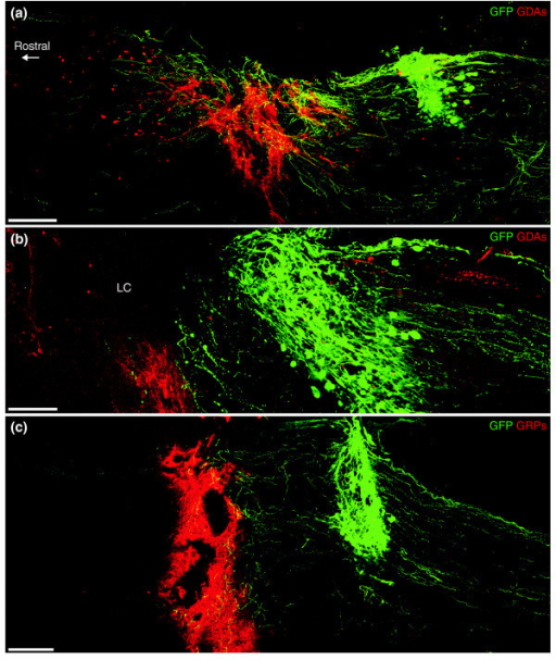 A comparison of the ability of GDA versus GRP transplants to promote axon growth across dorsal column injuries from adjacent microtransplanted adult sensory neurons at 8 days after injury and transplantation. (a) A montaged, confocal image scanned from a single 75-μm thick sagittally oriented section showing GFP+ axons (green) entering and exiting a dorsal column lesion bridged with hPAP+(red) GDAs. (b) In two cases in which GDA transplants did not adequately fill the injury site or migrate into lesion margins, GFP+sensory axons failed to cross the caudal lesion margin and instead formed dystrophic endings identical to those in control untreated injuries. LC, lesion center. (c) Confocal montage showing the complete failure of transplanted GRPs to support the growth of GFP axons across a dorsal column injury. Note that, despite the ability of transplanted GRPs to span the injury site, the majority of GFP+ axons have formed dystrophic endings within the caudal lesion margin. Scale bars: (a) 300 μm; (b) 100 μm; (c) 200 μm.
