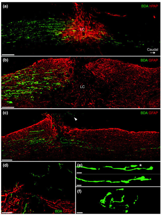 Transplanted GDAs promote regeneration of rubrospinal axons. (a) Confocal montage scanned through a depth of 60 μm, showing a small population of BDA+ rubrospinal tract (RST) axons (green) that have traversed a GDA-bridged (red) lesion of the dorsolateral funiculus and entered caudal white matter at 8 days after injury. The majority of RST axons, however, have sprouted to within 300 μm of the lesion center (LC) but failed to extend beyond the site of injury. Note the absence of BDA-labeled axons within the dorsal-most regions of the injury site. (b) Confocal montage showing the complete failure of axotomized BDA+ RST axons to cross control lesions at 8 days after injury and that the majority of axons have remained within rostral lesion margins at a distance of 500–800 μm from the lesion center (LC). (c) At 5 weeks after injury and transplantation, a small population of BDA+ RST axons have traversed GDA-bridged injury sites and extended within caudal white matter. Note that BDA+ axons have also sprouted into the dorsal regions of the lesion center and even extended beyond the pial surface (arrowhead; see also the high-power image in (d)). Note the lower levels of GFAP immunoreactivity (red) in more ventral regions of the injury margins and center, coincident with the presence of BDA+ axons. (e) Two examples of RST axons displaying growth cones within white matter 2 mm caudal to a GDA-treated lesion, at 5 weeks after transplantation. Note the collateral branch (asterisk). (f) Confocal image of a BDA+ terminal field-like axonal plexus within layer 5 spinal cord gray matter, immediately adjacent to the dorsolateral funiculus white matter at 5 weeks after injury and transplantation. In contrast, in all GDA-transplanted rats and controls injected with medium alone at 8 days after injury, no BDA labeling was observed within gray matter beyond the injury site. Scale bars: (a-c) 200 μm; (d) 100 μm; (e) 5 μm; (f) 10 μm.