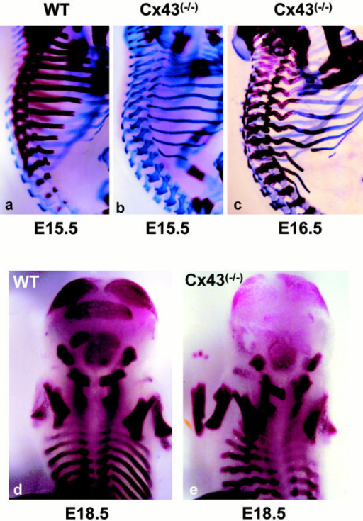 Axial development in Cx43−/− embryos. Lateral view of the thoracic vertebrae stained with alizarin red/alcian blue of (a and b) E15.5 and (c) E16.5 (a and d) wild-type embryos and (b, c, and e) Cx43−/− homozygous mutants. (b and c) Note the delayed ossification of the vertebrae and ribs and the thinner and deformed ribs in the mutant animals. Posterior view of the head and thorax of alizarin red–stained (d) wild-type and (e) Cx43−/− embryos at E18.5 showing a similar ossification of the vertebrae, limbs, and exoccipital bones, but delayed ossification of the parietal, interparietal, and supraoccipital bones. Note that the two ossification centers of the supraoccipital bone have not fused in the Cx43−/−.